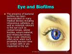 eye and biofilms
