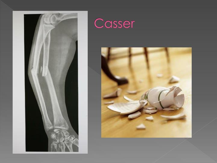 Casser