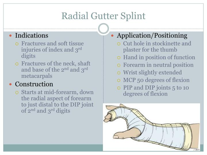 Ppt Procedures Splinting Powerpoint Presentation Id