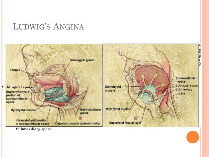 Submandibular Space Anatomy Choice Image - human body anatomy