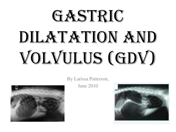 Gastric dilatation and volvulus gdv
