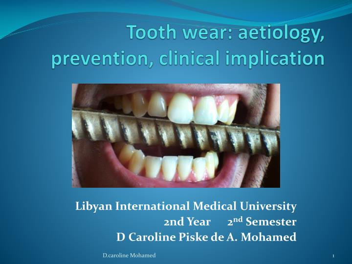 tooth wear aetiology prevention clinical implication n.