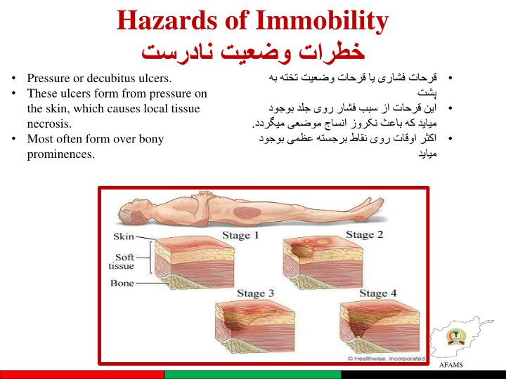 Hazards of Immobility