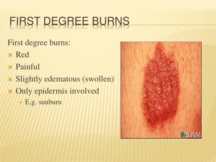 First degree burns