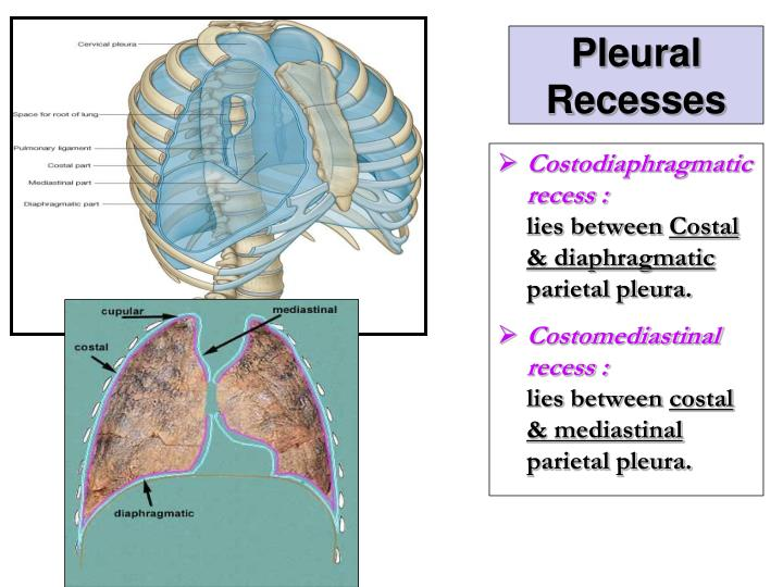 PPT - Pleura and Lung PowerPoint Presentation - ID:2308086