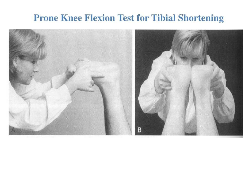 PPT - Knee and Ankle PowerPoint Presentation, free ...