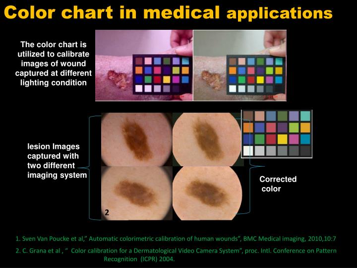 Color chart in medical
