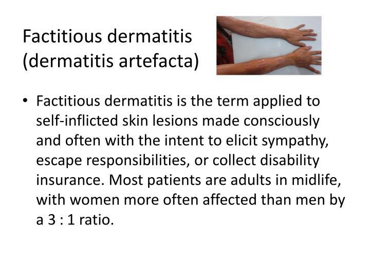 Factitious dermatitis