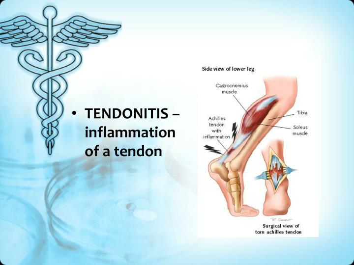 TENDONITIS – inflammation of a tendon