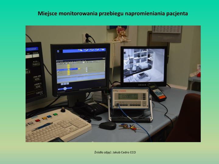 Miejsce monitorowania przebiegu napromieniania pacjenta
