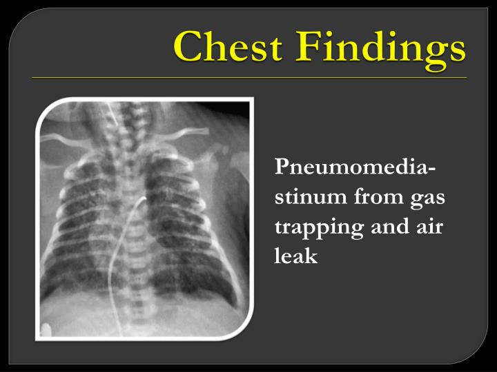 Chest Findings