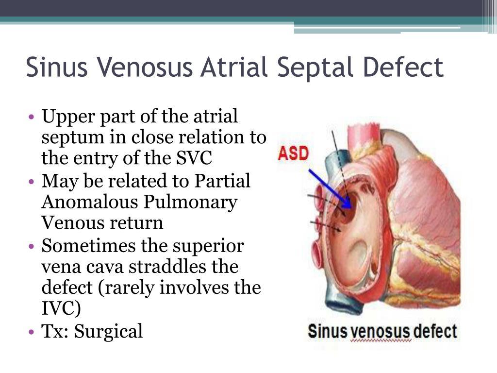 PPT - CONGENITAL HEART DISEASES PowerPoint Presentation ...  Sinus Venosus Asd