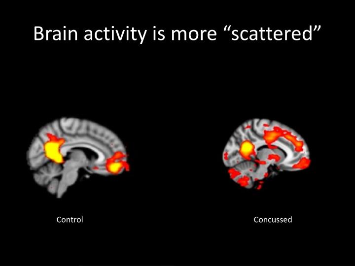 """Brain activity is more """"scattered"""""""