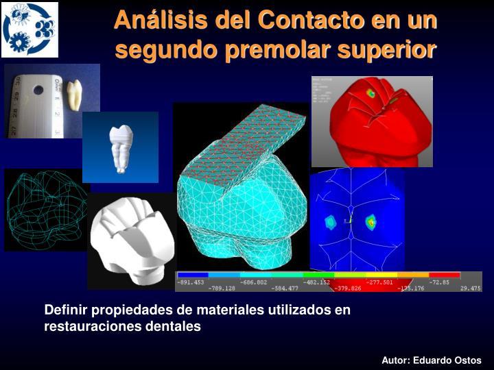 Análisis del Contacto en un segundo premolar superior