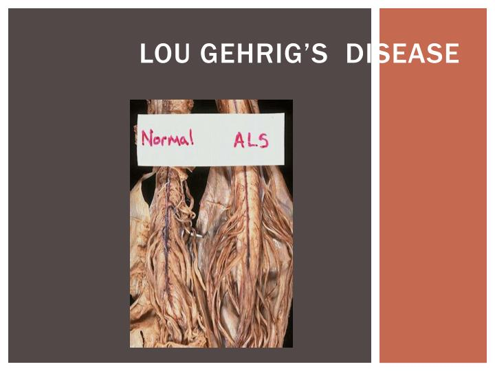 lou gehrigs disease Lou gehrig disease: amyotrophic lateral sclerosis (als), a classic motor neuron disease motor neuron diseases are progressive chronic diseases of the nerves that come from the spinal cord responsible for supplying electrical stimulation to the muscles.