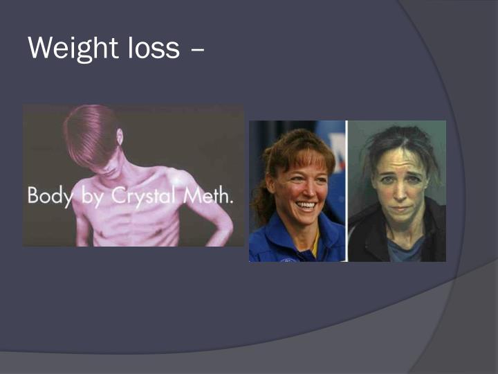 Weight loss –