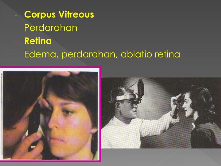 Corpus Vitreous