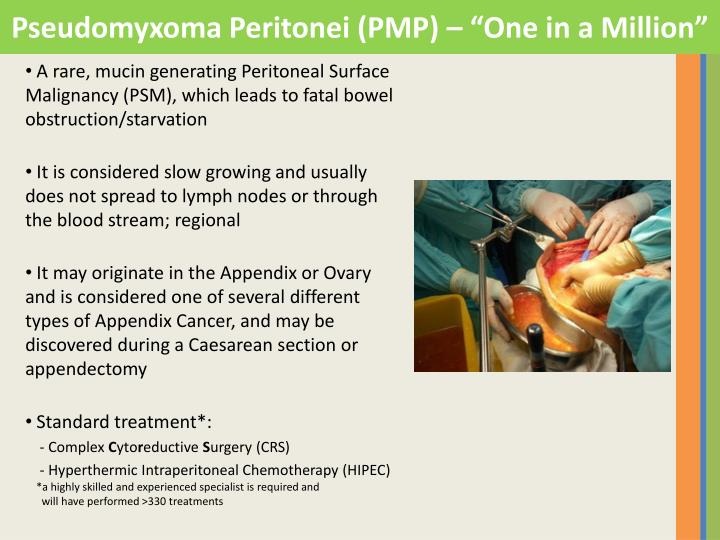 "Pseudomyxoma Peritonei (PMP) – ""One in a Million"""