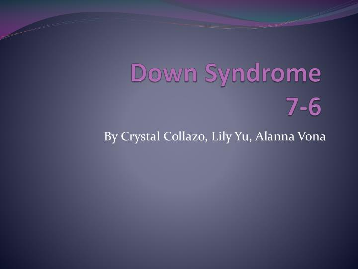down syndrome 7 6 n.