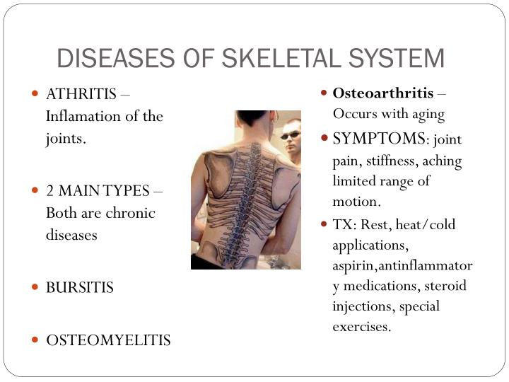 DISEASES OF SKELETAL SYSTEM