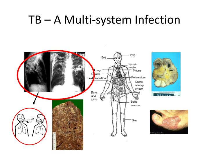 TB – A Multi-system Infection
