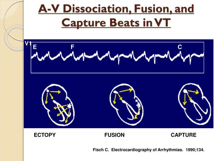 A-V Dissociation, Fusion, and