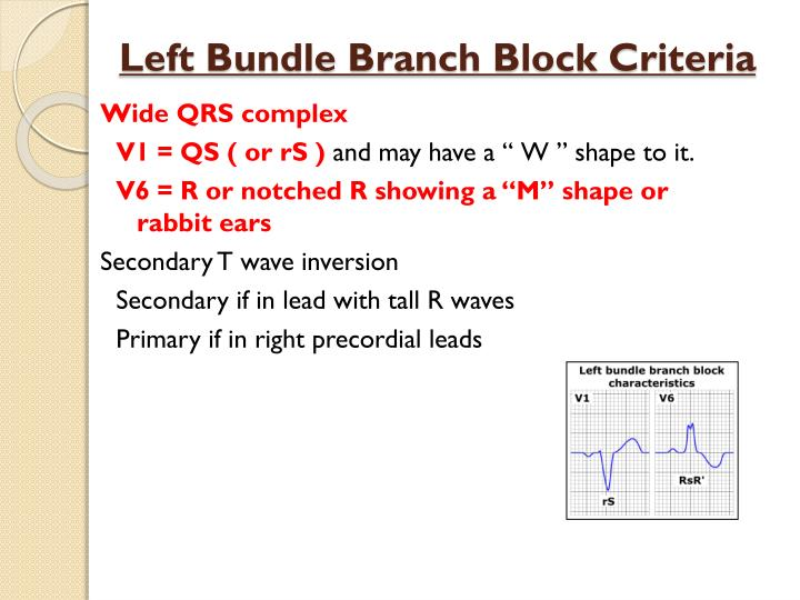 Left Bundle Branch Block Criteria