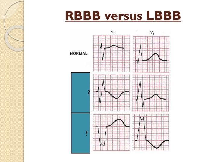 RBBB versus LBBB