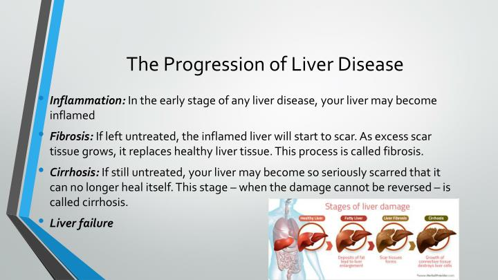 PPT - Cirrhosis of the Liver PowerPoint Presentation - ID ...