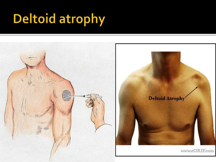Deltoid atrophy