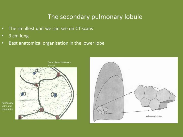 Ppt Basic Chest Radiology 2 Powerpoint Presentation Id2372961