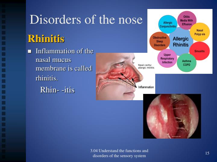 Disorders of the nose