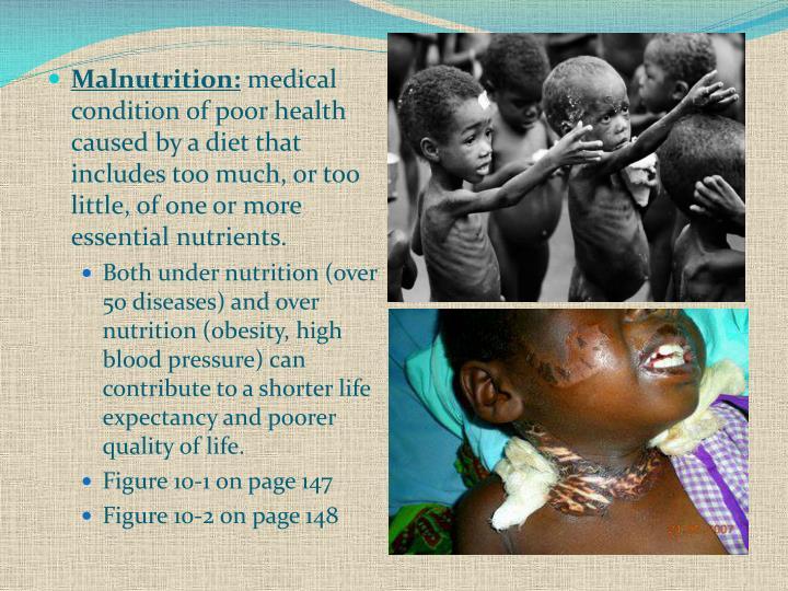 Malnutrition: