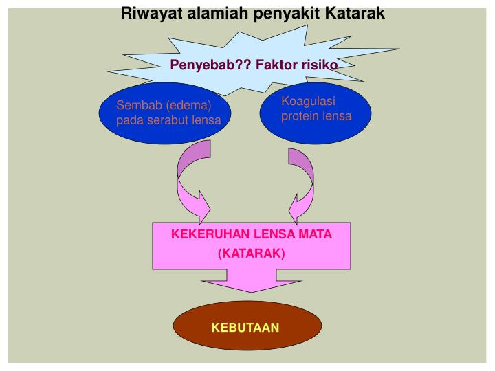 Riwayat alamiah penyakit Katarak