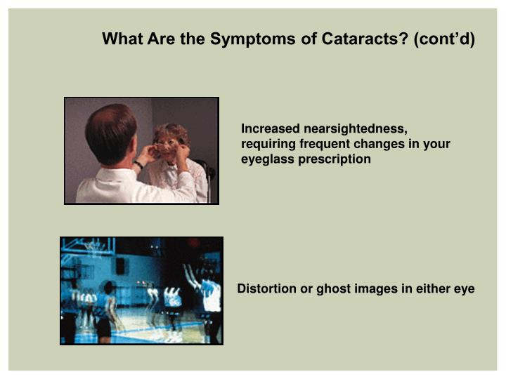 What Are the Symptoms of Cataracts? (cont'd)