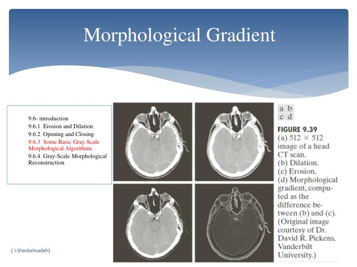 Morphological Gradient