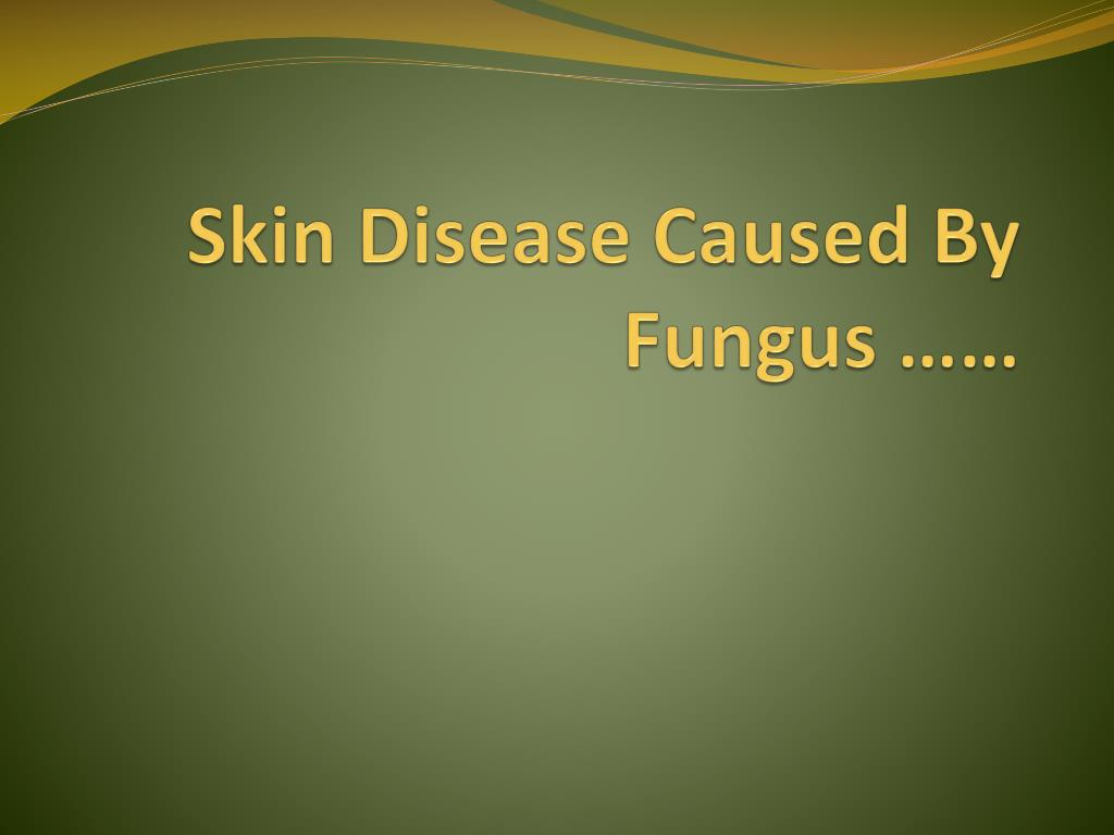 Ppt - Pet Safetyzoonotic Diseases Powerpoint Presentation -7500