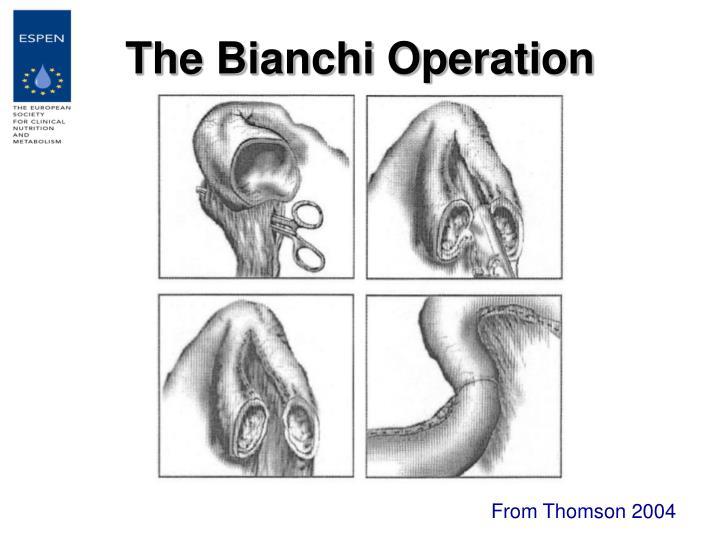The Bianchi Operation
