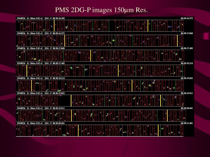 PMS 2DG-P images 150µm Res.