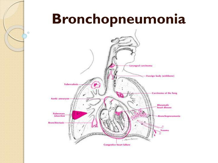 bronchopneumonia introduction case study Objectives description of a 75 year old female patient's case study, without previous psychiatric history, diagnosed with bronchopneumonia and requiring treatment with prednisone 40 mg daily.