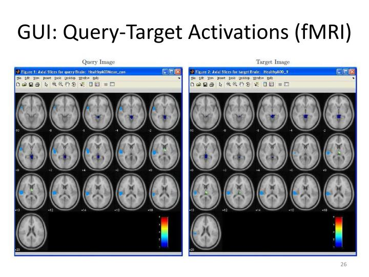 GUI: Query-Target Activations (fMRI)