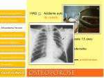 osteoporose17
