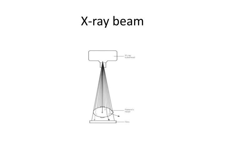 X ray beam