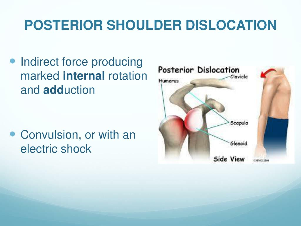 PPT - Acute Joint Dislocation PowerPoint Presentation ...