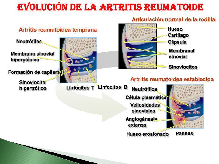 Evolución de la artritis reumatoide