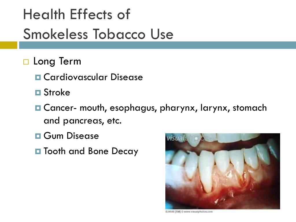 PPT - Snuff out tobacco PowerPoint Presentation - ID:2449710
