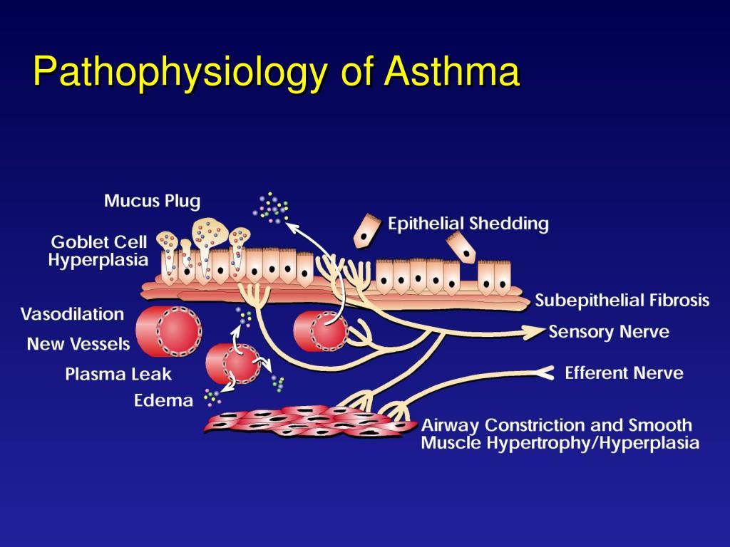 PPT - Asthma Pathophysiology Asthma Overview PowerPoint ...