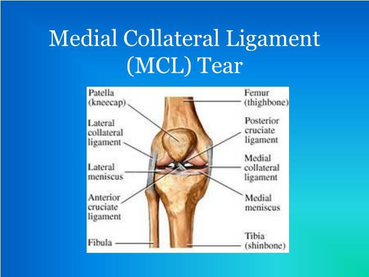 the ways of treatment of the medial collateral ligament injury Learn about the reasons for knee ligament repair or when surgery may be medial collateral ligament early medical treatment for knee ligament injury may.