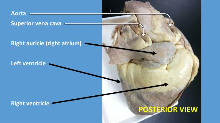 PPT - Aorta Right auricle (right atrium) Pulmonary trunk Left ...