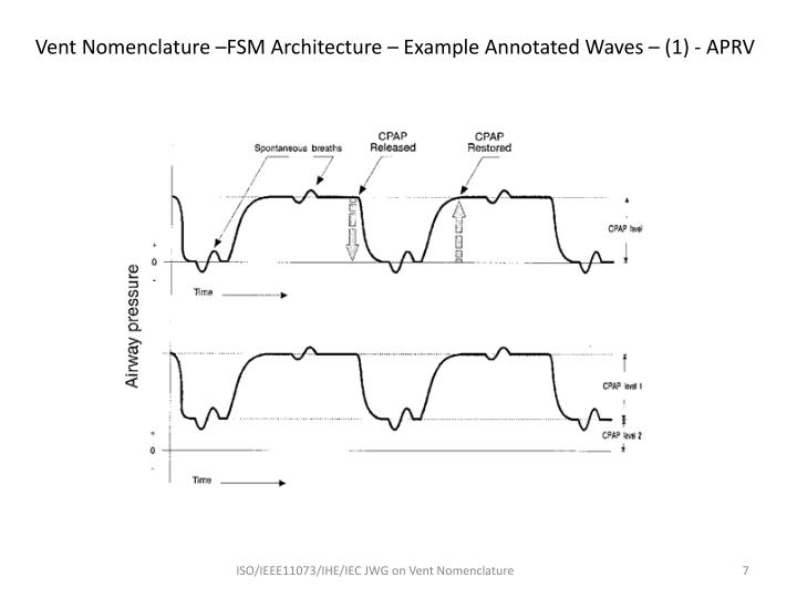 Vent Nomenclature –FSM Architecture – Example Annotated Waves – (1) - APRV